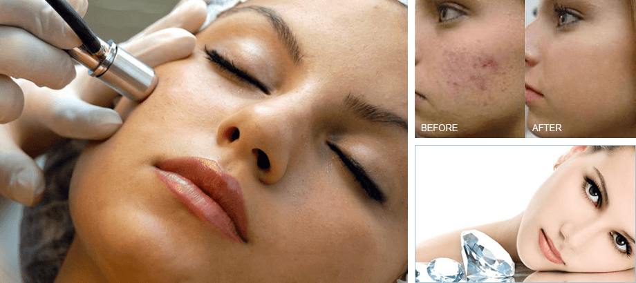 smoother skin beauty procedure
